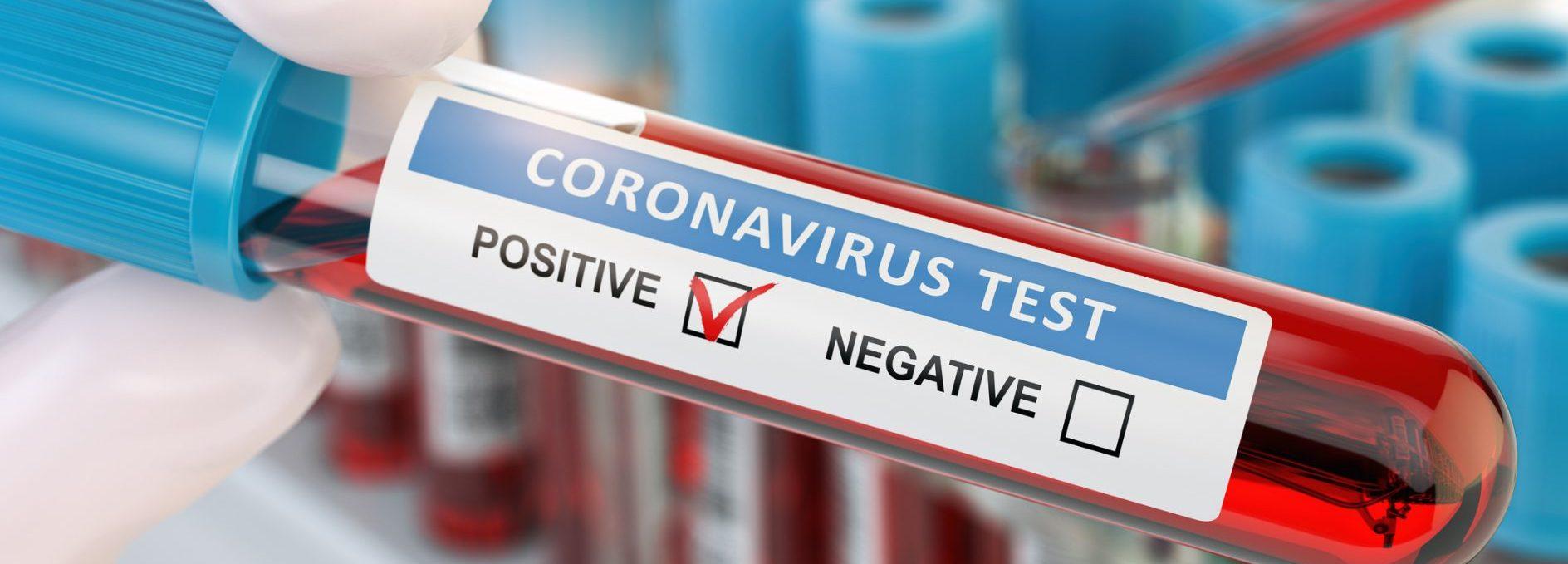 CoronaVirus Pandemic Planning